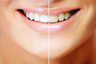 黄ばんだ歯を白くして素敵な笑顔を手に入れよう!歯の黄ばみへの有効成分大公開!